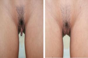 Rejuvenecimiento o Moldeamiento Vaginal