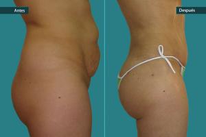 Colocación de Prótesis Glúteas o con Grasa (Obesidad Mórbida)