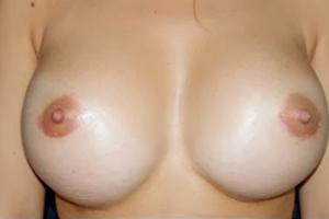 Mamoplastia-de-Aumento-con-Implantes