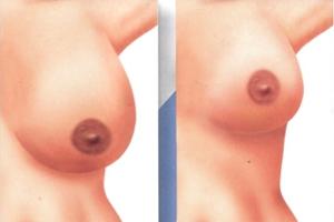 Mamoplastia-de-Reducción